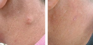 cyst-removal-before-and-after